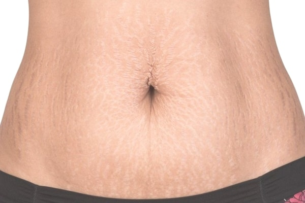 Cách chữa rạn da sau sinh đơn giản tại nhà bằng tự nhiên