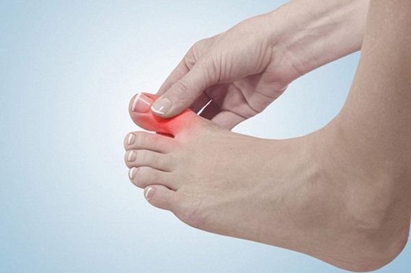 Đau khớp ngón chân và cách khắc phục hiệu quả