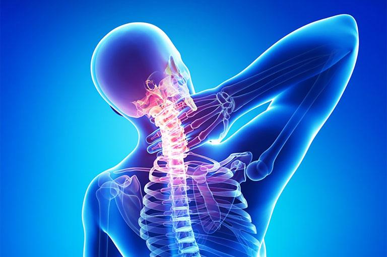 Biểu hiện của bệnh đau cột sống cổ cách phòng ngừa hiệu quả
