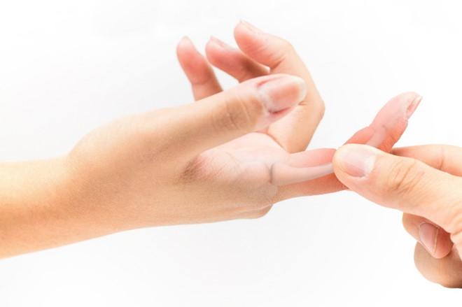 Cách Điều trị đau nhức khớp tay chân bạn nên biết